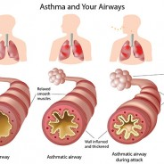 Homeopathy and Asthma